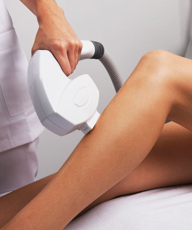 Treatment IPL Permanent hair removal